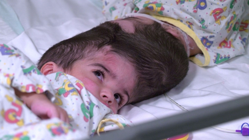 Conjoined Twins Separated in London: 55 Hours of Surgery